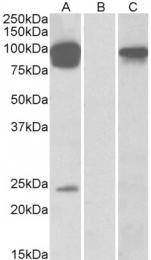 GTX88648 - TRPV3 / Vanilloid receptor-like 3