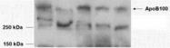 GTX88654 - Apolipoprotein B / Apo B