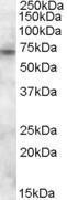 GTX88667 - ABCD3 / PMP70