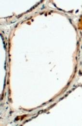 GTX88773 - Dual oxidase 1