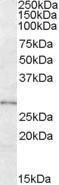 GTX88793 - LYPLAL1