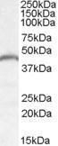 GTX88810 - PNPLA3 / ADPN