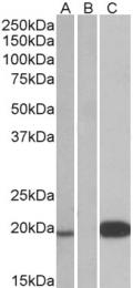 GTX88824 - Urocortin-3 (UCN3)