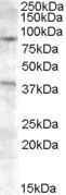 GTX88837 - Exonuclease 1 (EXO1)