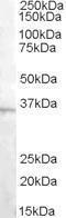 GTX88848 - L-asparaginase