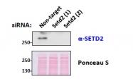GTX88922 - SETD2 / HIF1