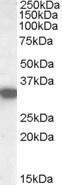 GTX88923 - HADH / HCDH