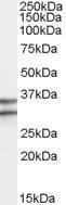 GTX88978 - GPR3 / ACCA