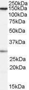 GTX89051 - SUPT16H / FACT140