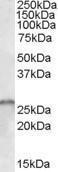 GTX89136 - SMN1 / SMN2