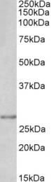 GTX89239 - SNAI1