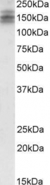 GTX89275 - DSCAM
