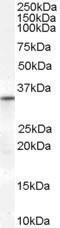 GTX89279 - VDAC2