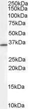 GTX89285 - RNF115
