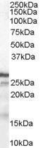 GTX89293 - CDKN1B / KIP1