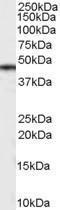 GTX89349 - Casein kinase I delta