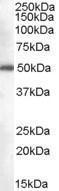 GTX89391 - DDX6