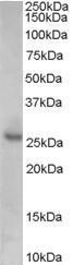 GTX89392 - CDKN1B / KIP1