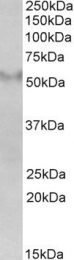 GTX89413 - FSD1