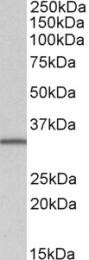 GTX89484 - SLC9A3R2 / NHERF2