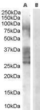 GTX89533 - ADAM33