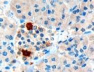 GTX89539 - Pancreatic prohormone