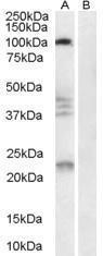 GTX89548 - Nogo 66 receptor