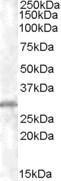 GTX89565 - CHMP5