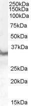 GTX89590 - CD274 / PDL1