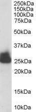 GTX89594 - Triosephosphate isomerase (TPI1)