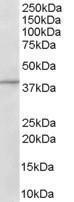 GTX89614 - ADAP1 / CENTA1