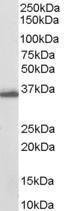 GTX89620 - AKR1C3 / DDH3