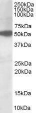 GTX89647 - AKT3 / PKB gamma