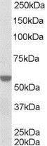 GTX89652 - RXR-alpha / RXRA