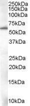 GTX89671 - 58K Golgi Protein