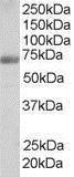 GTX89672 - Formin-binding protein 1