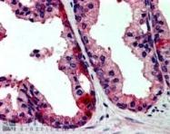GTX89693 - TAO kinase 3 (TAOK3)