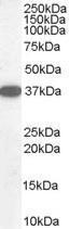 GTX89709 - DDAH1