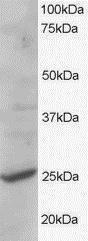 GTX89745 - CYB561D2
