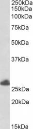 GTX89816 - TRIM40 / RNF35