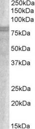 GTX89870 - Sorting nexin-18 (SNX18)
