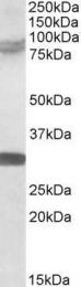 GTX89871 - TRIM2 / RNF86