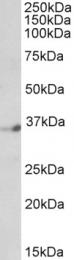 GTX89872 - NEUD4