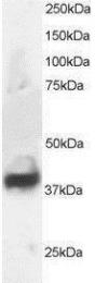 GTX89929 - Septin-3 (SEPT3)