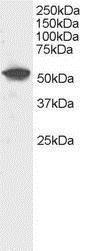 GTX89945 - DUSP10 / MKP5