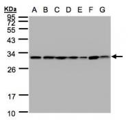GTX102199 - 14-3-3 protein theta