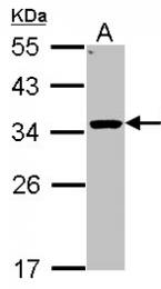 GTX104626 - 11-beta HSD1 / HSD11B1