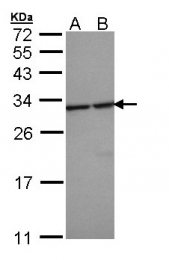 GTX109090 - 14-3-3 protein epsilon