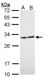 GTX112026 - 14-3-3 protein theta