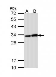 GTX112949 - 14-3-3 protein sigma / SFN